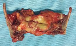 Laryngectomie partielle avec CHEP